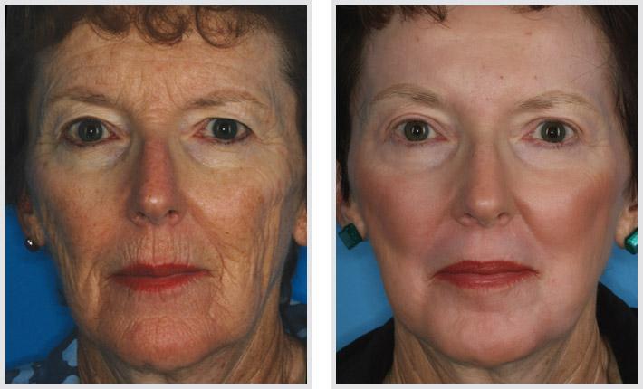 Laser Surgery Face Face Face Laser Surgery Pictures
