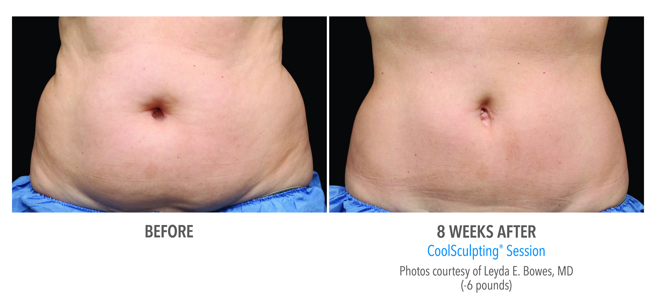 Muffin Top Before and After